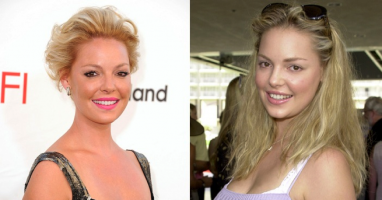 Katherine Heigl - Did she or didn't she? We analyze the plastic surgery rumours